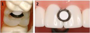 Detectores de MARC ubicados en posterior (1), a 2mm de la superficie oclusal y a 4mm de la punta de cúspide de un primero molar superior derecho, y anterior (2), a 1mm de la superficie vestibular de los incisivos centrales superiores.
