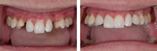 1 alt partial denture