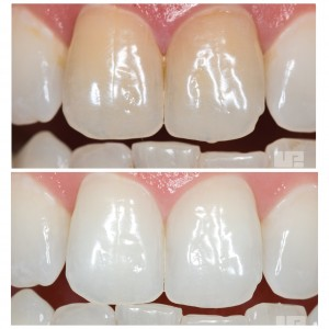 opalescence-endo-before-and-after-300x300