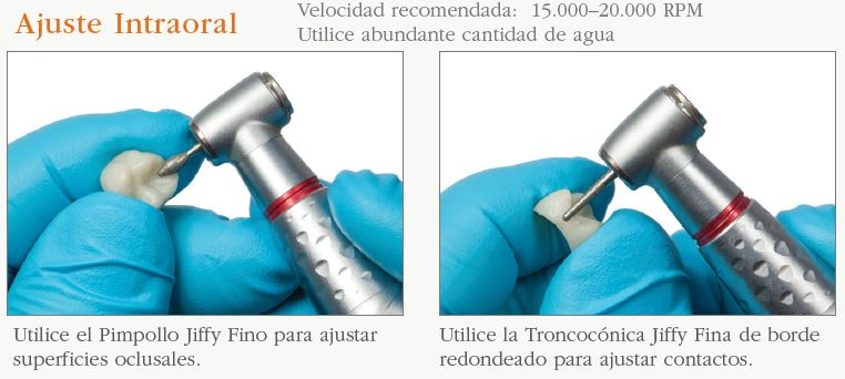 intraoral