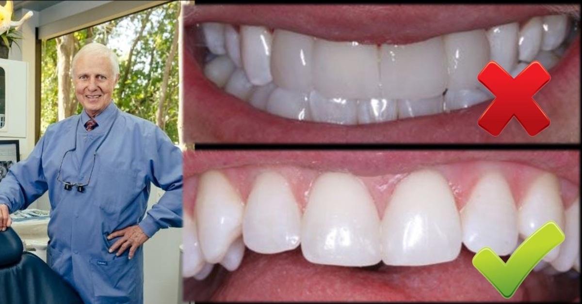 ¿Cuando Debe Involucrarse un Odontólogo en un Blanqueamiento?