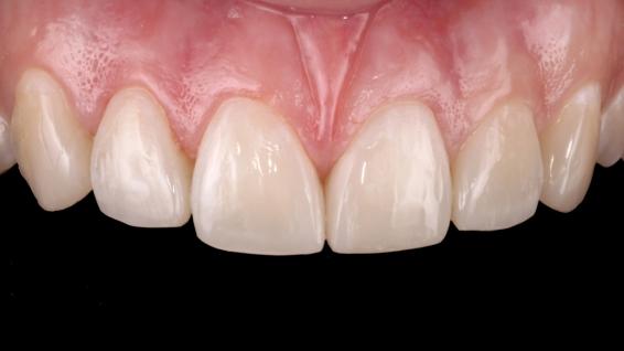 Restauraciones con tonos A2B y B1E en los dientes 11, 12, 21, 22