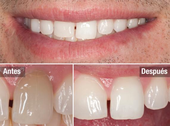 Insumos odontologicos